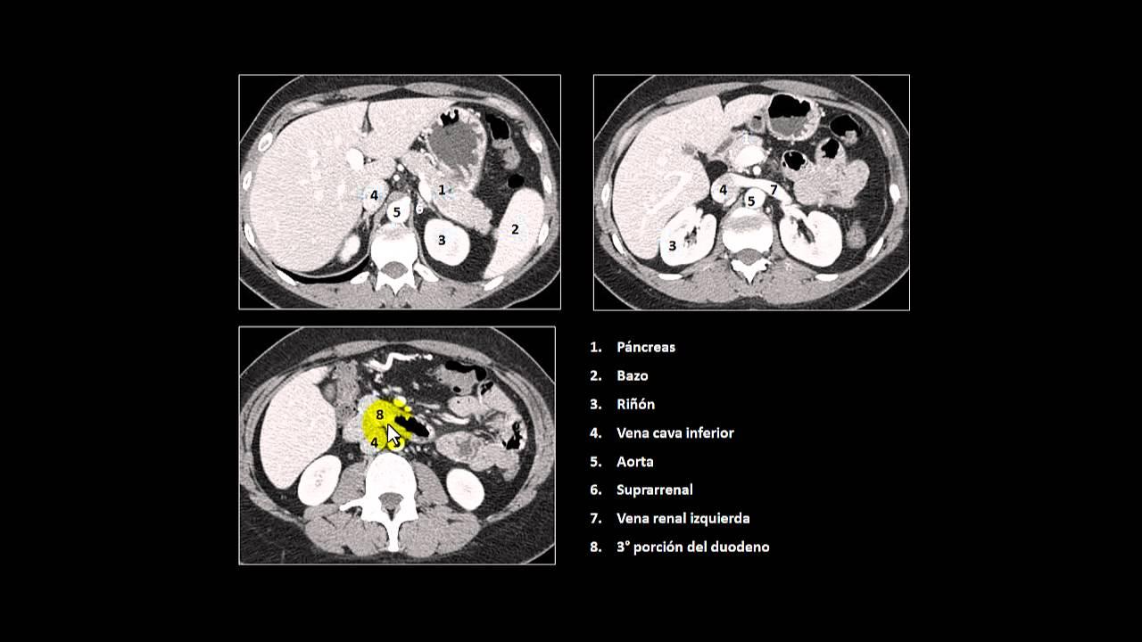 tc abdomen retroperitoneo - YouTube