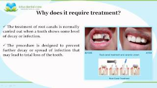 All about Root Canal Treatment by www.glendaleheightsdentist.com Thumbnail
