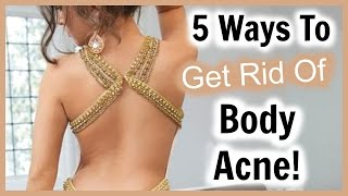 5 Ways to Get Rid of Back Acne! │ How to Get RID of Body Acne and Get Clear Skin