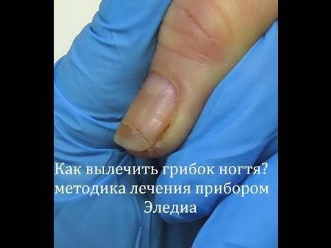 Лечение грибка ногтей на руках - советы и рекомендации