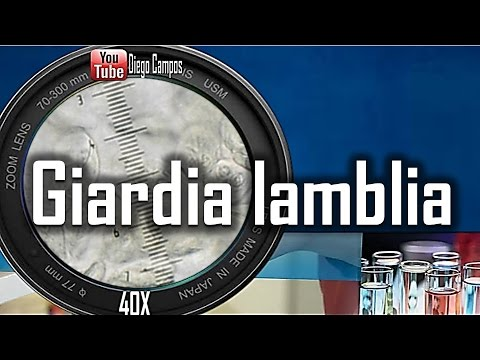 Giardia lamblia (Giardiasis) - Trofozoito en movimiento