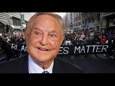 George Soros Manifestations on Face&Eye