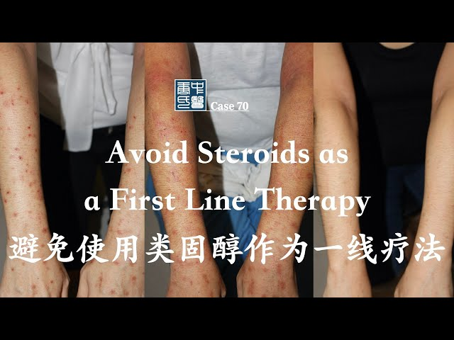 Avoid Steroids as a First Line Therapy 避免使用类固醇作为一线疗法