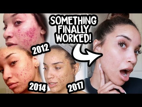 CLEAR SKIN AFTER 10 YEARS OF ACNE | My Accutane Experience with Before and After Pics