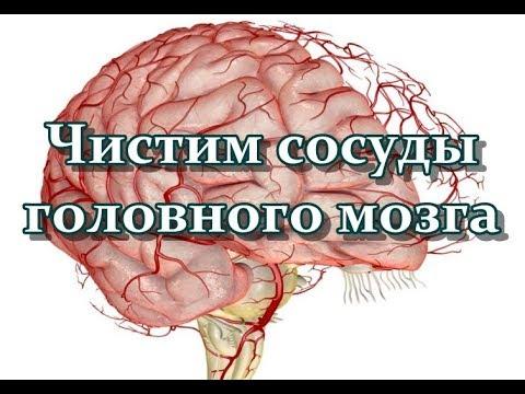 Чистим сосуды головного мозга - лучшие рецепты