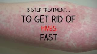 INCREDIBLE 3 Step Treatment To Get Rid Of Your Hives FAST!!