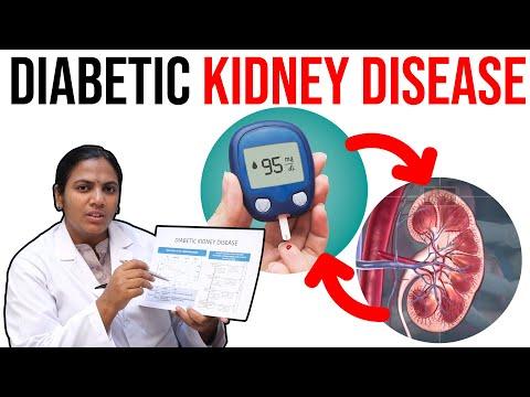 Diabetic Kidney Disease - What Are The Symptoms Of Diabetic Kidney Disease.?   Dr. Anjani Achanta