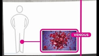 Deep Vein Thrombosis.