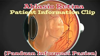 Cerita Pengalaman Terkena Ablasio Retina / Retinal Detachment | #RetinalDetachmentStory 04.