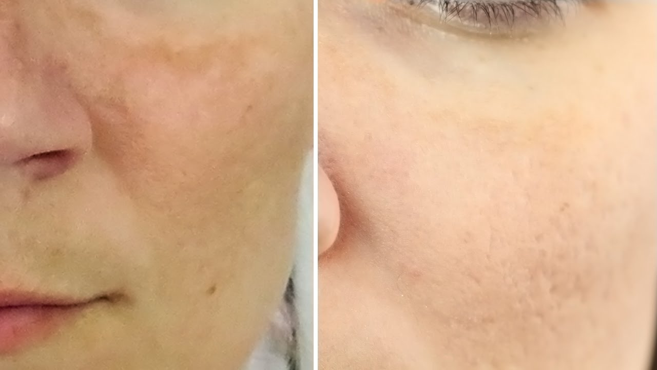 8 Natural Home Remedies to Clear Melasma