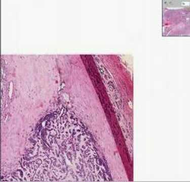Pleomorphic adenoma thyroid cancer