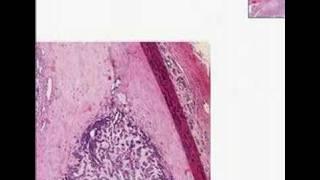 Histopathology Salivary gland--Adenoid cystic carcinoma