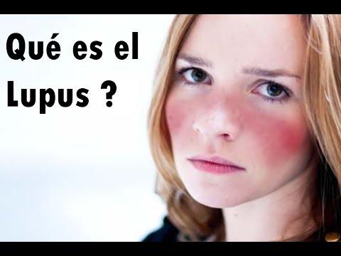 Qué es el Lupus?