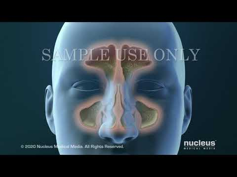 Atlanta ENT Specialist: Sinusitis Surgery