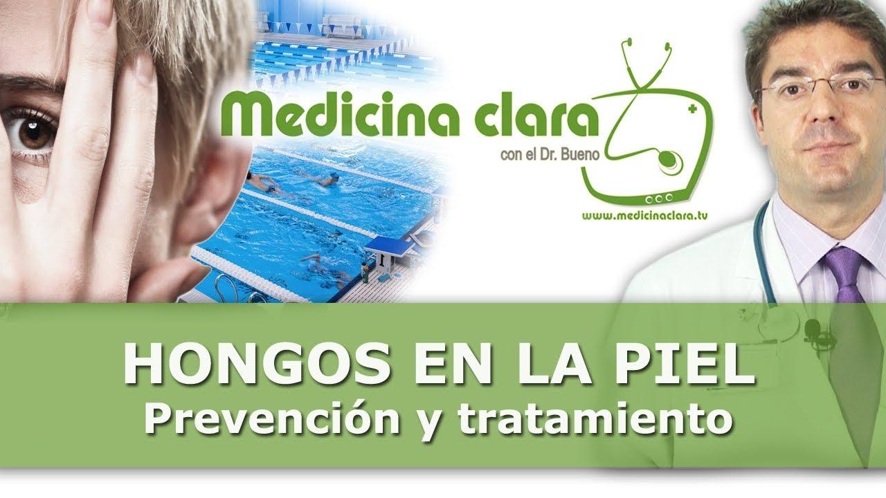 tratamiento hongos en la piel niños