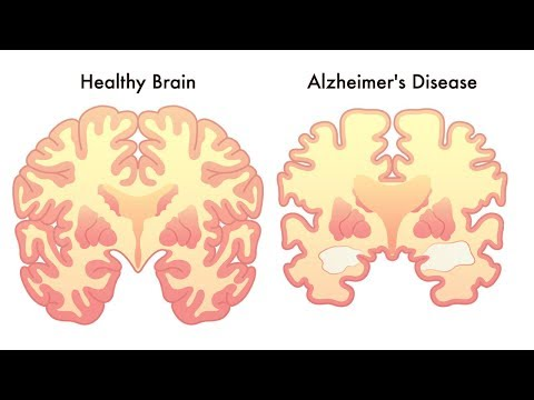 4 Habits You Need To Adopt Today To Stop Dementia or Alzheimer's Before It Starts