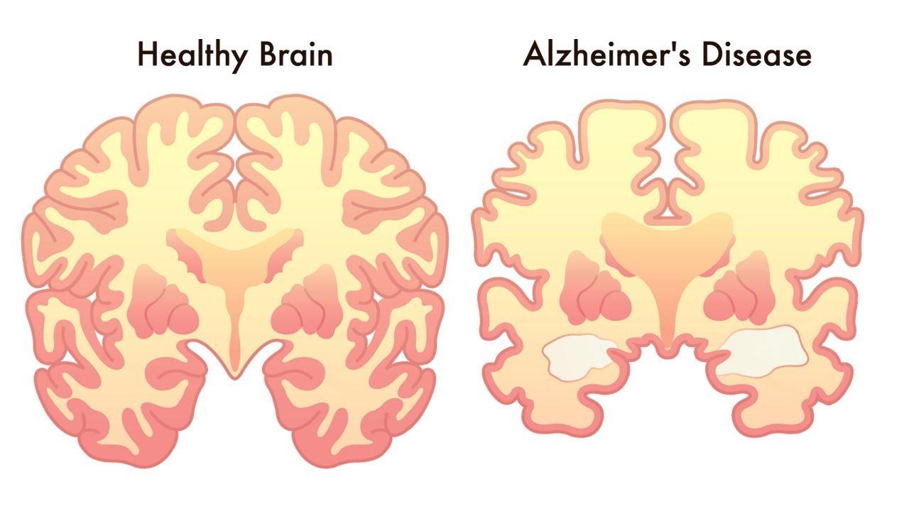 Pakar Kaitkan Penyakit Gusi dengan Alzheimer
