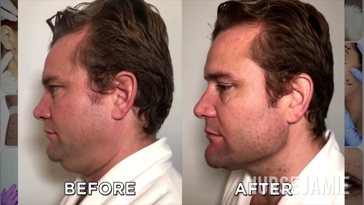How To Get Rid Of Your Double Chin With Nurse Jamie Youtube