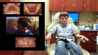 Jaw Expansion Dental Treatment Narrow Jaw | Patient has TMJ & Neck Tics (Tourette Like Symptoms) Thumbnail