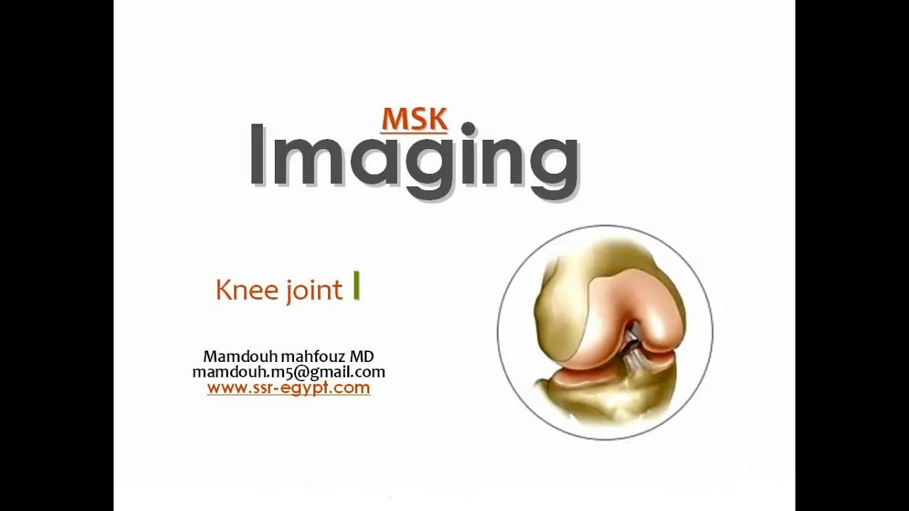 Imaging of the Knee joint ( part I ) -DRE 1 - Dr Mamdouh Mahfouz ...