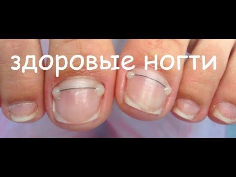 как вылечить вросшие ногти на ногах