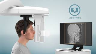 CS 8100 3D Family With Cephalometric Imaging option