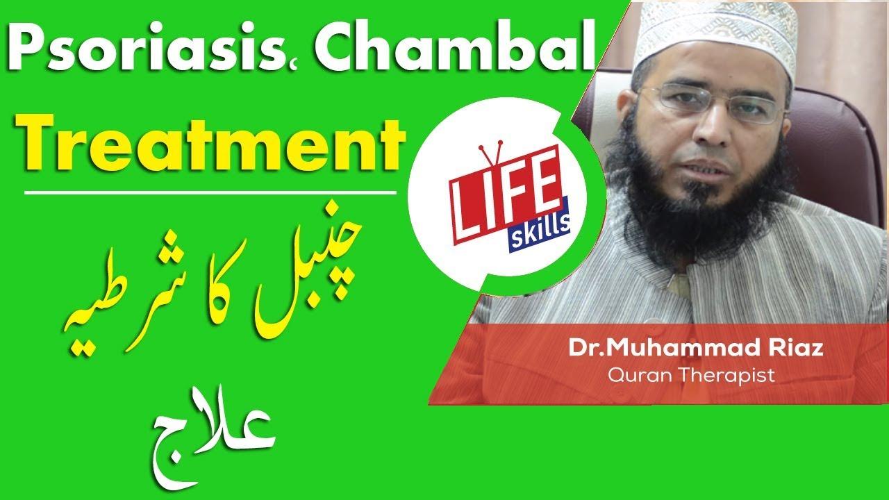psoriasis treatment in urdu