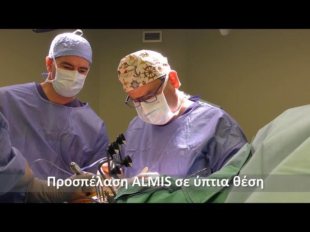 Ρομποτική (ΜΑΚΟ) αρθροπλαστική ισχίου ALMIS ταχείας κινητοποίησης (Fast Track)