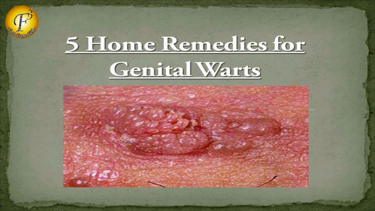 causes of genital warts Genital warts cause symptoms like small bumps on the skin that can be treated by applying cream to the area, or by freezing them.