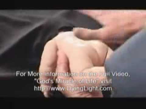Partial-Birth Abortion Procedure With Real Instruments - Pro-Life Anti-Abortion Video