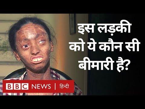 Lamellar Ichthyosis क्या बला है और इसमें इंसानी त्वचा का क्या होता है? (BBC Hindi)