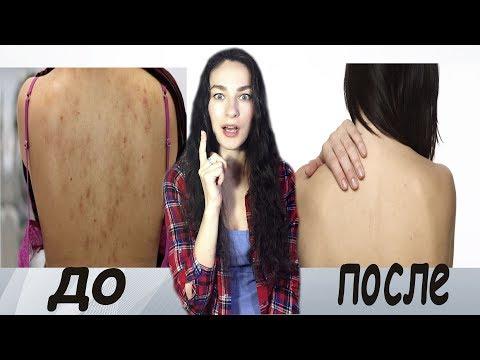Вопрос: Как очистить спину от прыщей?