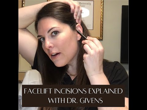 The SECRET to HIDDEN facelift incisions with Dr. Givens!