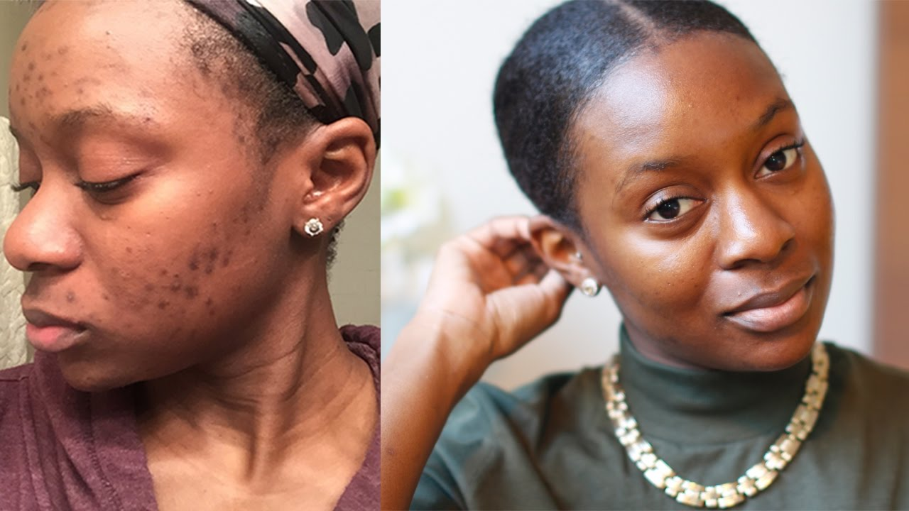Clear Hyperpigmentation On Dark Skin Chemical Peel