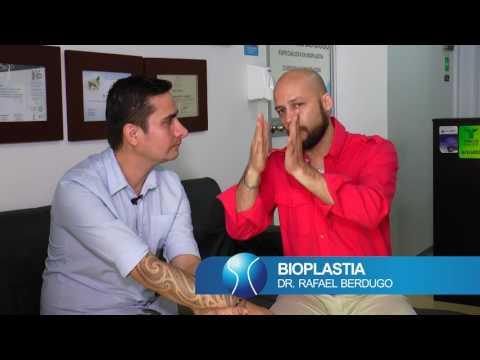 BIOPLASTIA DE NARIZ - DR RAFAEL BERDUGO - BIOPLASTIA COLOMBIA
