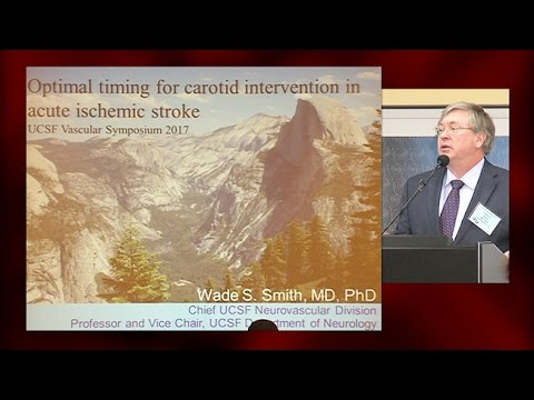 Optimal Timing of Carotid Intervention in Acute Ischemic Stroke