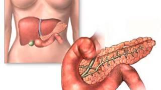 Симптомы панкреатита у женщины