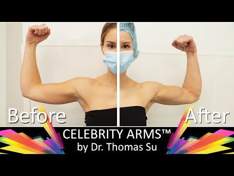 Celebrity Arms™ | Lipo 360° Arms | Arm Liposuction Immediate Results| High Definition |Expert Dr. Su