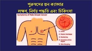 পুরুষদের স্তন ক্যান্সার   লক্ষণ, নির্ণয় পদ্ধতি এবং চিকিৎসা !! bangla health tips for men 2017