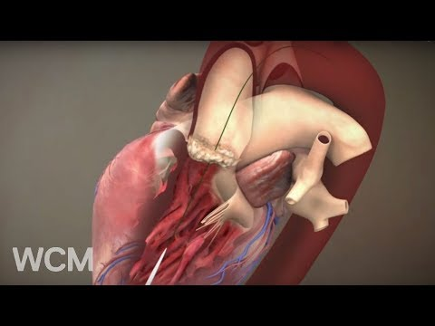 Rebuilding the Heart From Within: Transcatheter Aortic Valve Replacement