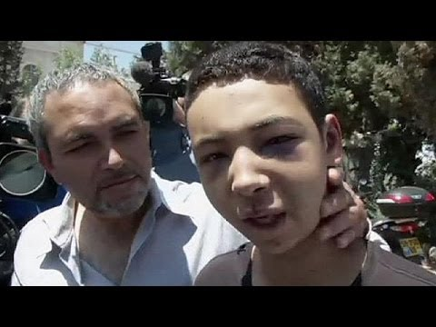 Palestinian-American teen beaten by Israeli police released from jail - no comment