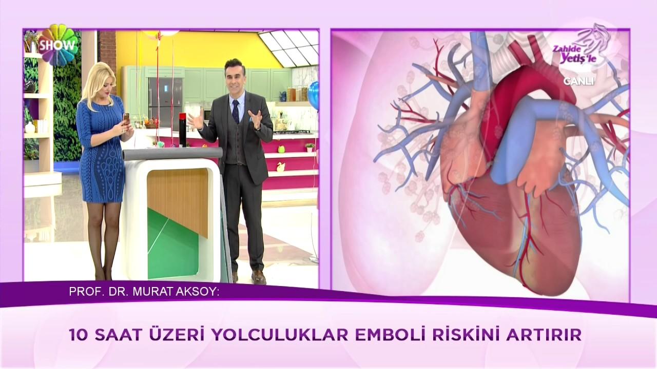 Akciğer Embolisi neden olur?