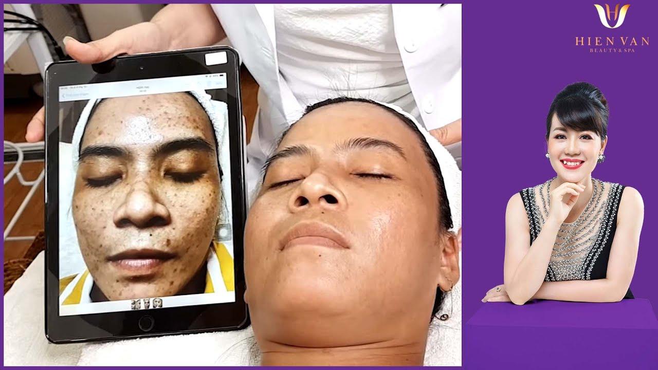 Effective treatment of brown spots| Điều trị nám, tàn nhang, đốm nâu | Hiền Vân Spa |Kim Thơ|555