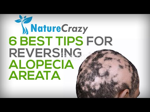 Nature Crazy's 6 Best Tips For Reversing Alopecia Areata Hair Loss
