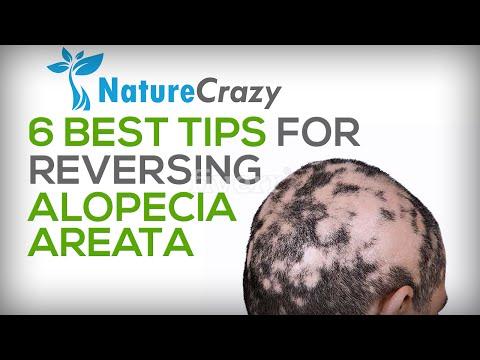 Alopecia Areata Hair Loss: Top 6 Tips For Reversing Alopecia Areata