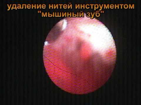 Болит внутренний шов после кесарева
