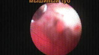 Шов после Кесарева сечения. Нитки в матке. Удаление.(Гибкая гистероскопия проводилась 35-и летней пациентке 11 марта 2011 года в связи с вторичным бесплодием. Шестн..., 2011-03-26T22:48:25.000Z)