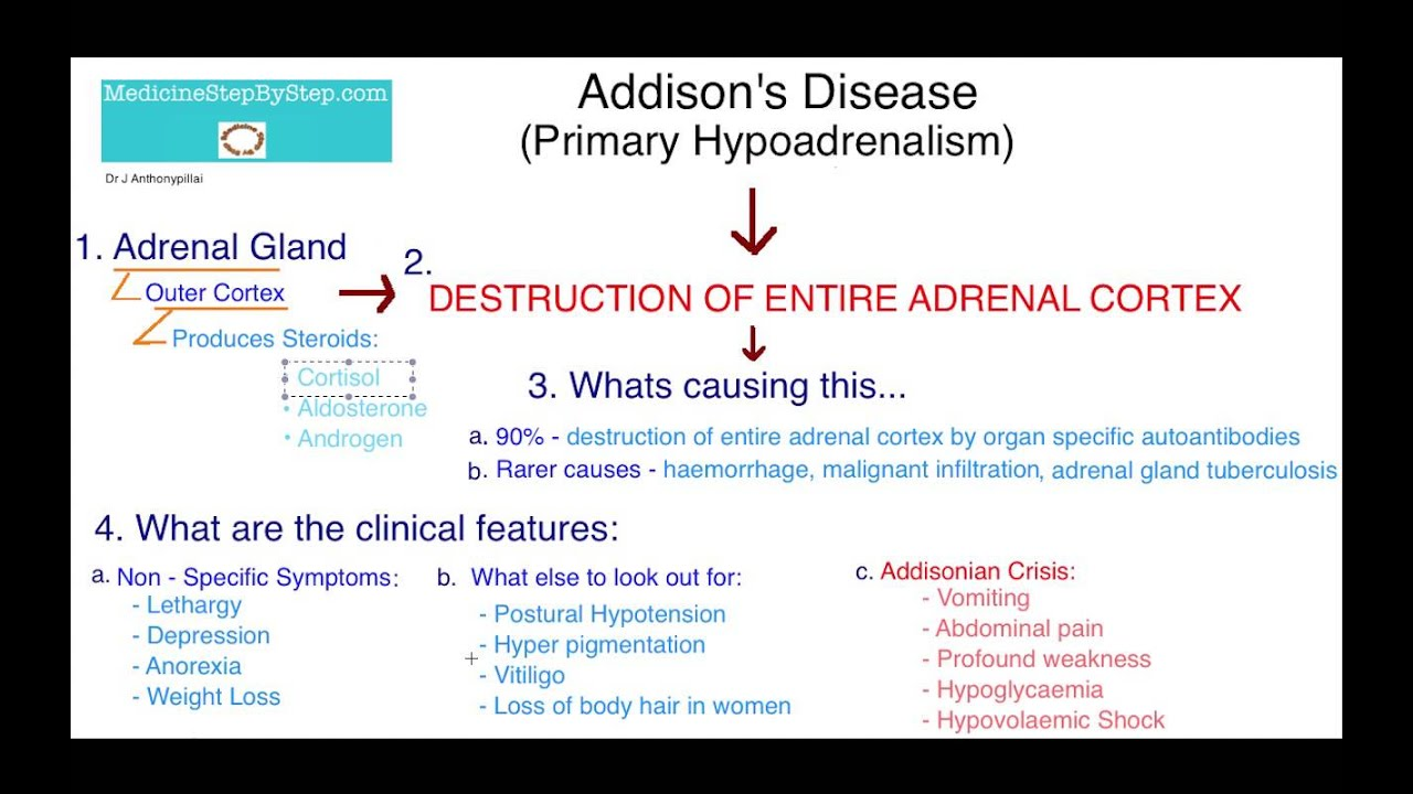 Understanding Addison s Disease - YouTube