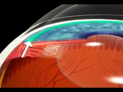 how to detect open angle glaucoma