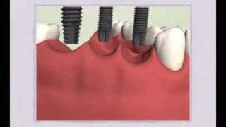 Имплантация: Имплантация в боковом отделе зубов(, 2010-06-10T07:53:24.000Z)